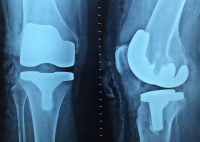 Sector ortopédico